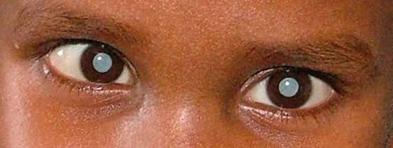 Photo: Child Sight Foundation  Published in: Community Eye Health Journal Vol. 23 No. 72 MARCH 2010 www.cehjournal.org
