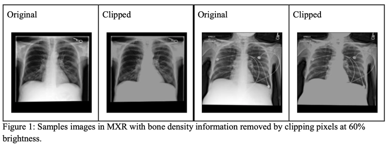 Reading Race: AI Recognizes Patient's Racial Identity In Medical Images Clipped Chest X Ray Figure