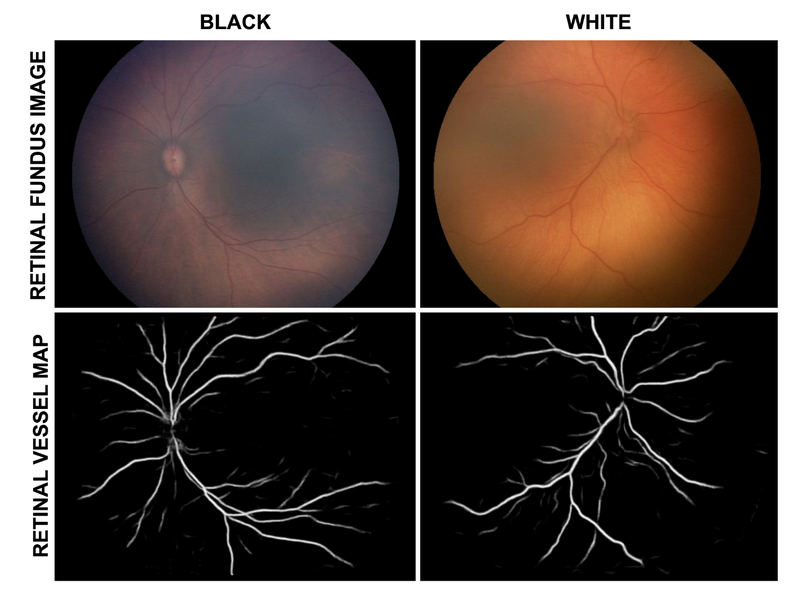 Example retinal fundus images (RFIs) and associated retinal vessel maps (RVMs)collected from Black and White babies.